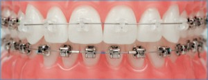 Damon Clear Braces versus traditional Braces